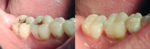 лечение кариеса До и После