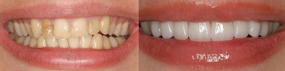 Эстетическая реставрация зубов СПб